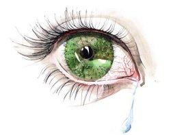 red eye, dry eye