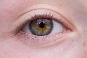 Eye exams detect Maculat Degeneration