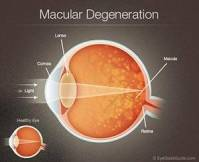 macular degeneration diagram