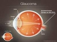 Glaucoma Testing Kansas City