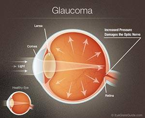 Glaucoma Testing and Treatment in Corsicana, TX