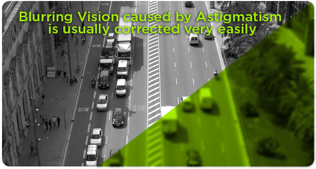 Astigmatism treatment Southlake TX